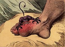 Gout Cure Through Diet Alone