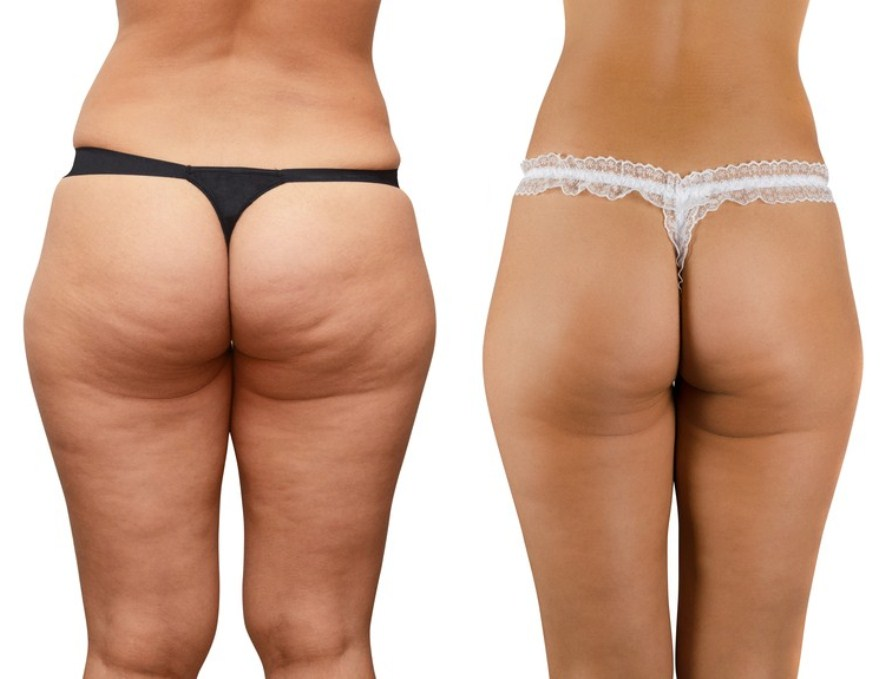 paleo-how-to-get-rid-of-cellulite